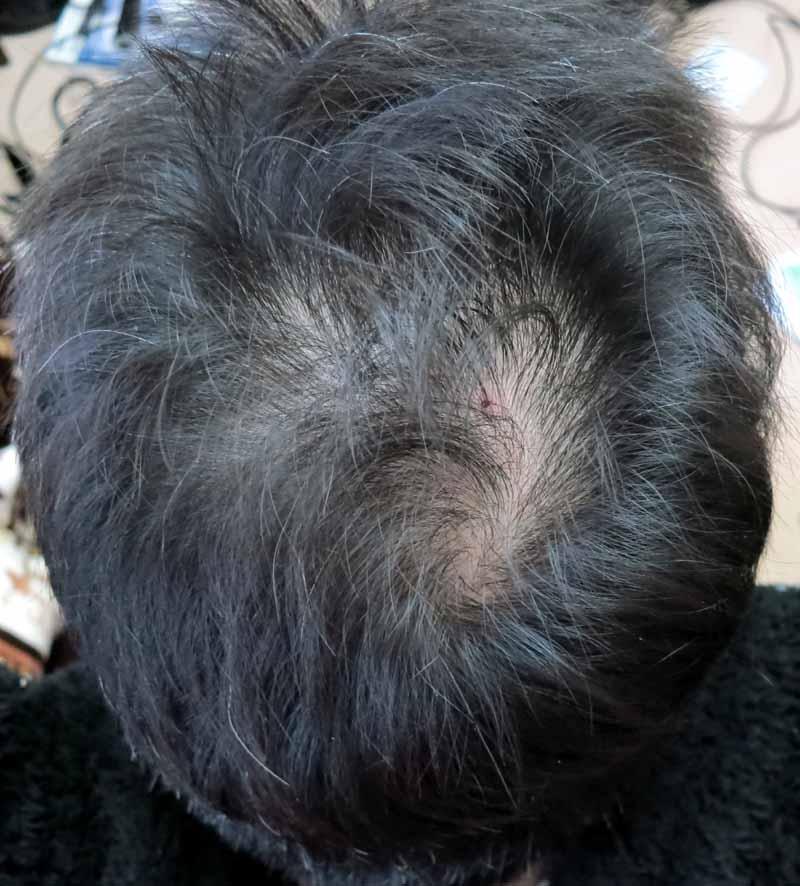 プロペシアを飲んで7ヶ月目の後頭部の写真